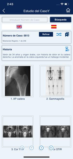 MSK Radiology 4U